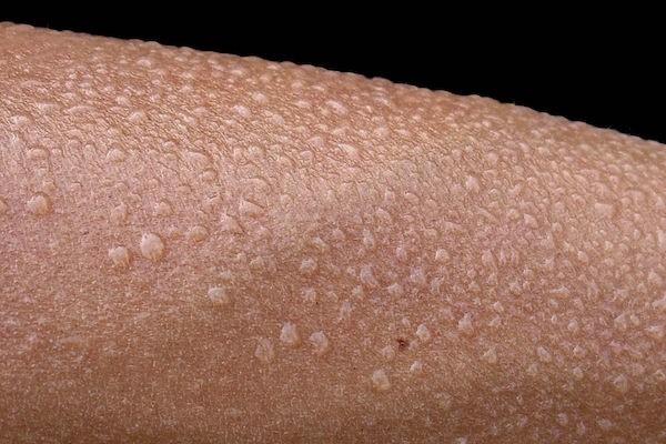 Hyperhidrose généralisée : un type de transpiration excessive